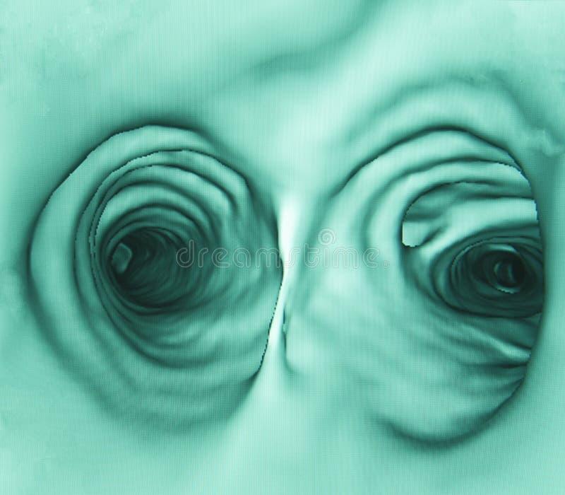 Inre mänsklig bronchus, lunga CT arkivbilder