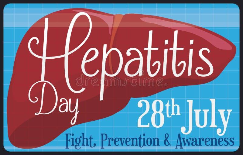 Insegna medica dell'esame sano del fegato per il giorno di epatite del mondo, illustrazione di vettore illustrazione di stock