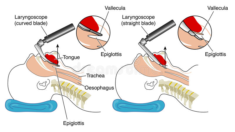 Inserting a laryngoscope. Illustration showing the insertion of both a curved bladed and a straight bladed laryngoscope vector illustration