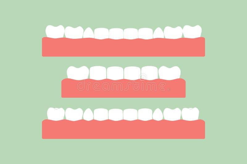 Insieme dei denti sani su gomma, cure odontoiatriche illustrazione vettoriale