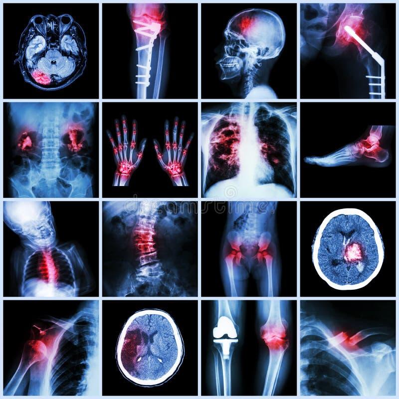 Insieme dei raggi x multipart della malattia umana e multipla, ortopedica, chirurgia (colpo, frattura, operazione ortopedica, cal fotografia stock