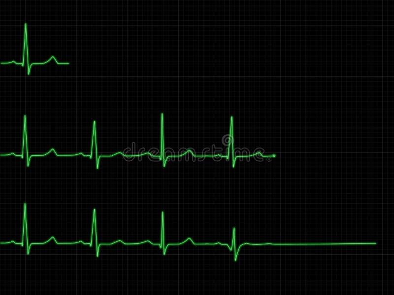 Insieme di ECG illustrazione vettoriale