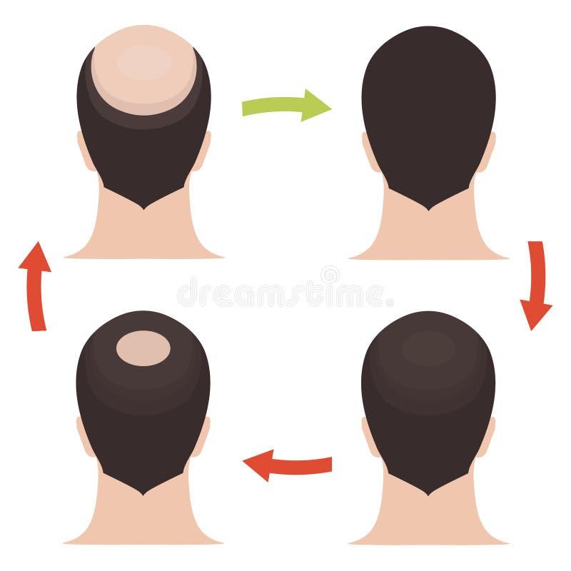 Insieme di fasi maschio di perdita di capelli illustrazione vettoriale