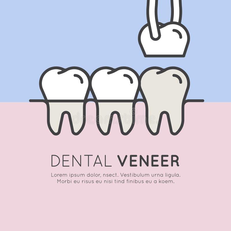 Instalación dental de la chapa del diente libre illustration