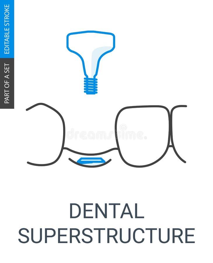 Instalación dental de la superestructura stock de ilustración