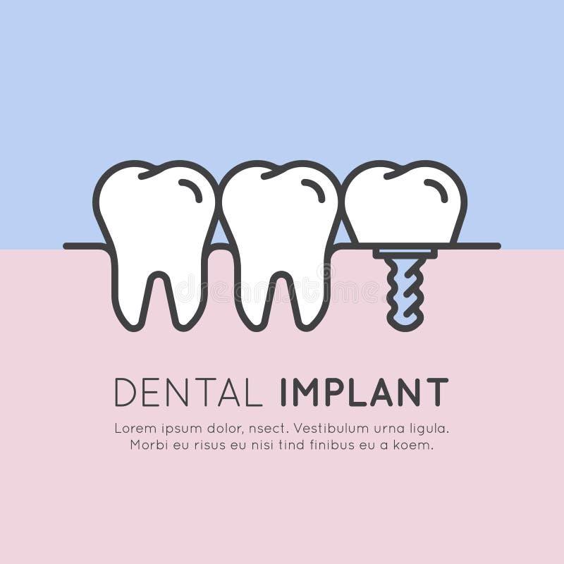 Instalación dental del implante del diente stock de ilustración