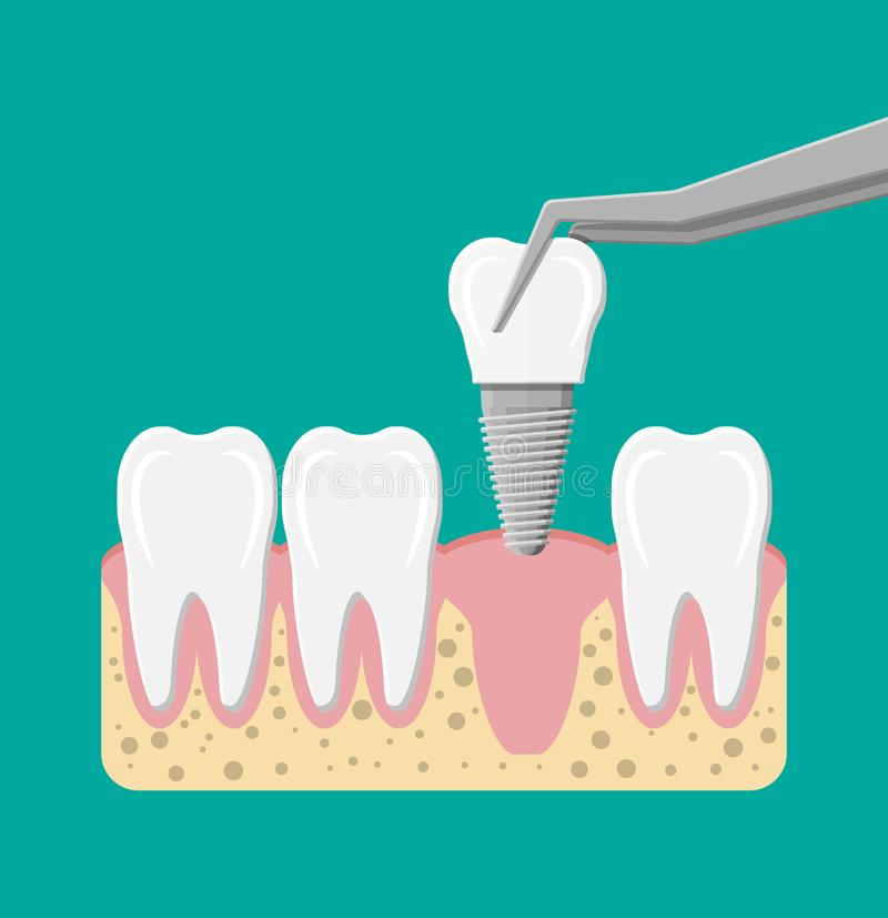 Installation de l'implant dentaire illustration libre de droits