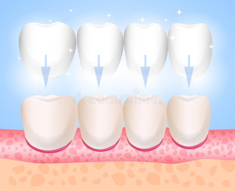 Installation de placages Placages, Lumineers, onlays, microprosthesis Médecine esthétique Orthopédie d'art dentaire de direction illustration libre de droits