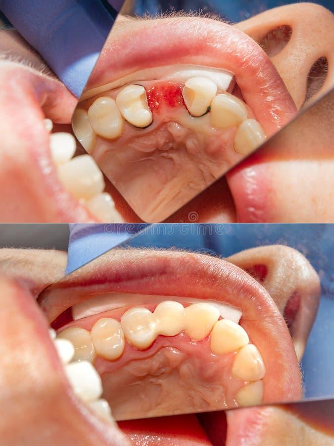 Installation de pont en fibre de verre sur les dents utilisant le plan rapproché matériel de restauration de photopolymer Le conc photographie stock libre de droits