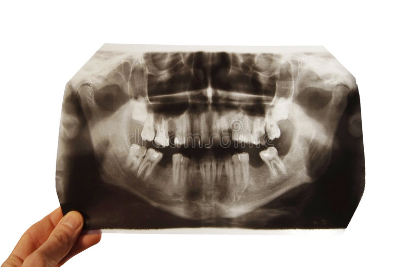 Instantané de rayon X photo libre de droits