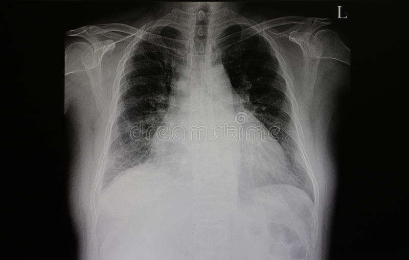 Insuffisance cardiaque congestive photographie stock libre de droits