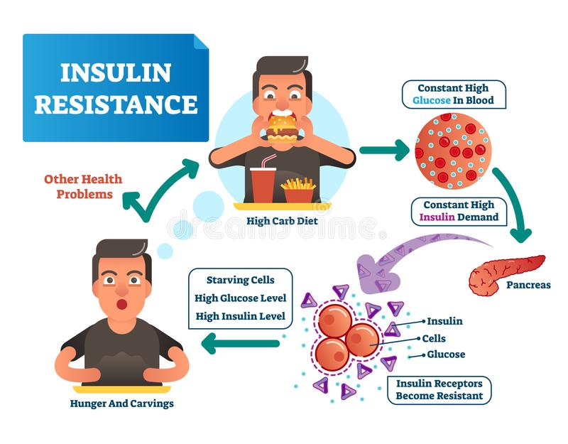 Insulin resistance vector illustration. Labeled scheme with all cycle of process. High glucose in blood, demand and pancreas. Insulin resistance vector stock illustration