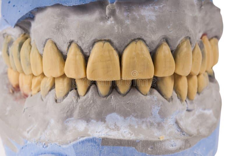 Intera impressione del gesso della mandibola immagine stock