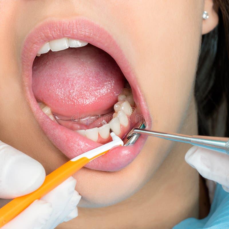 Interdental cleaning on human teeth. stock image