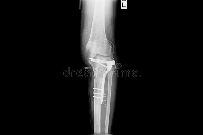 Internal of left leg fixed with plate and screws. Show image of tibia and fibula left lateral.demonstrated compound fracture of distal fibular bone stock images