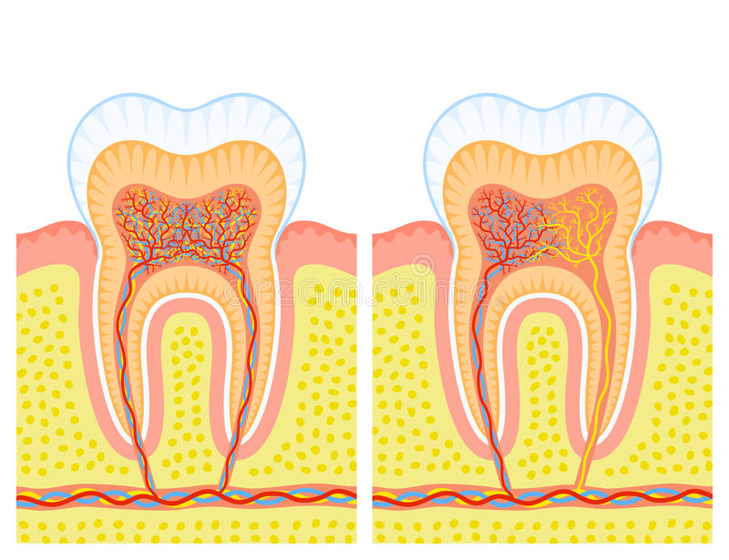 Download Internal Structure Of Tooth Stock Vector - Illustration: 24200691