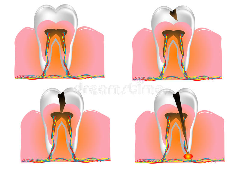 Download Structure Of The Tooth Royalty Free Stock Photo - Image: 29877335