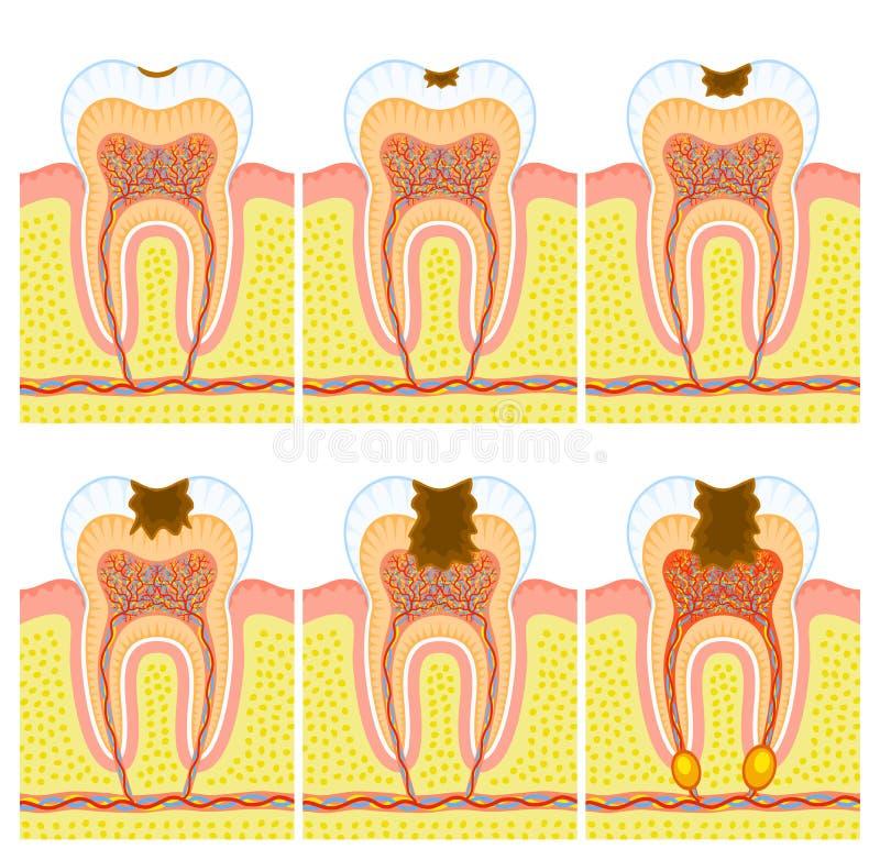 Interne structuur van tand stock illustratie