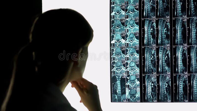 Interno dell'ospedale che controlla i raggi x dei pazienti, i sistemi diagnostici di lesione spinale e trattamento fotografie stock libere da diritti