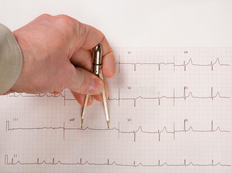 Intervalli del dottore Measuring EKG con i compassi fotografia stock libera da diritti