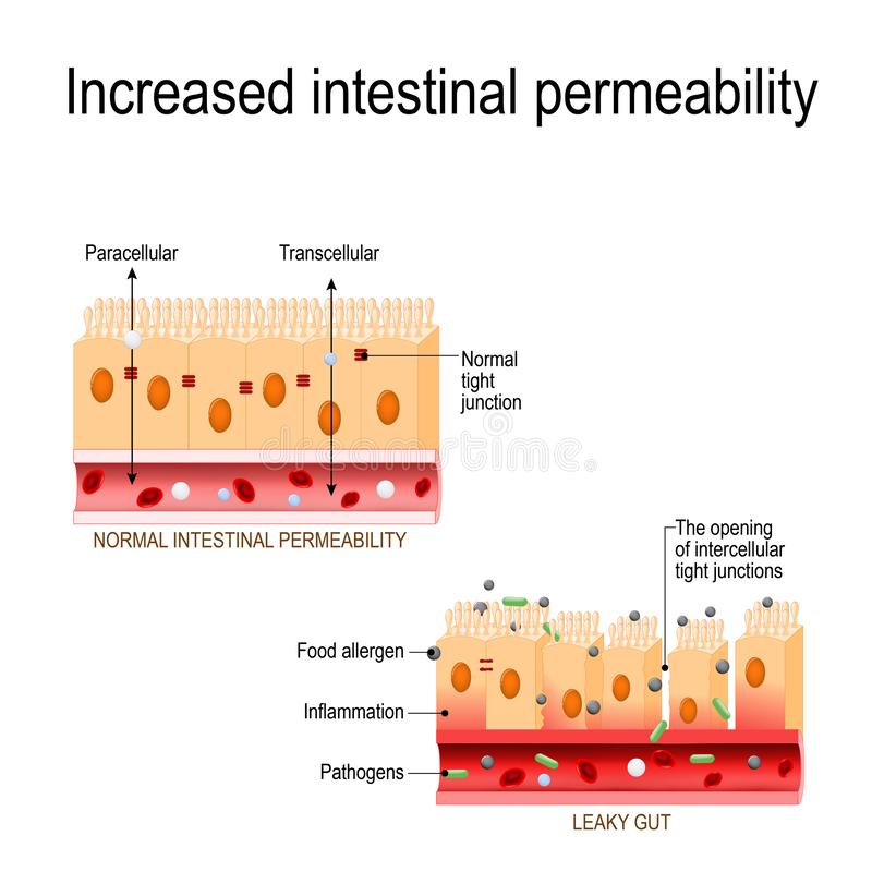 Intestino colante L'apertura delle giunzioni strette intercellulari ha aumentato la permeabilità intestinale royalty illustrazione gratis