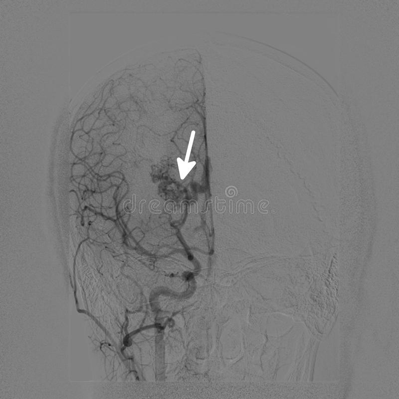 Intracranial vascular malformation. Cerebral angiography in a patient with intracranial vascular malformation (marked by arrow stock images