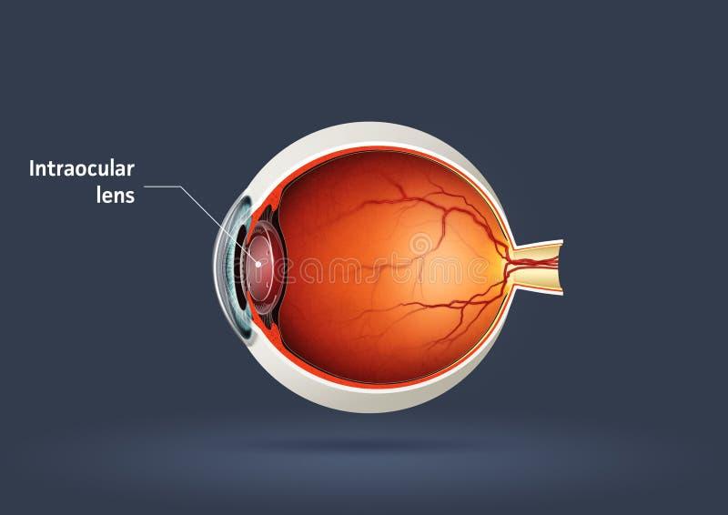 Intraocular lens. High quality raster illustration of intraocular lens vector illustration