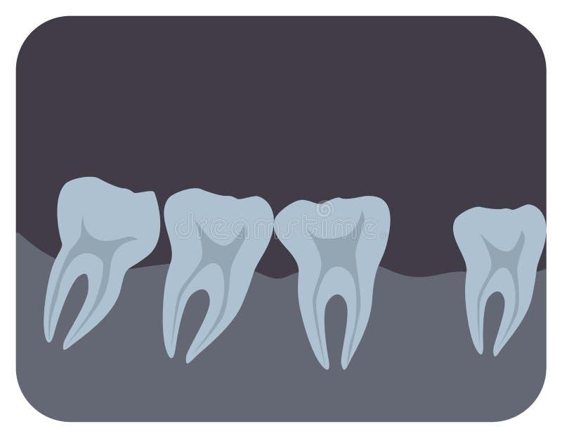 Intraoral radiograph ludzcy zęby i gingiva Stomatologiczny promieniowanie rentgenowskie obrazek lub radiograficzny monitoru wizer ilustracji