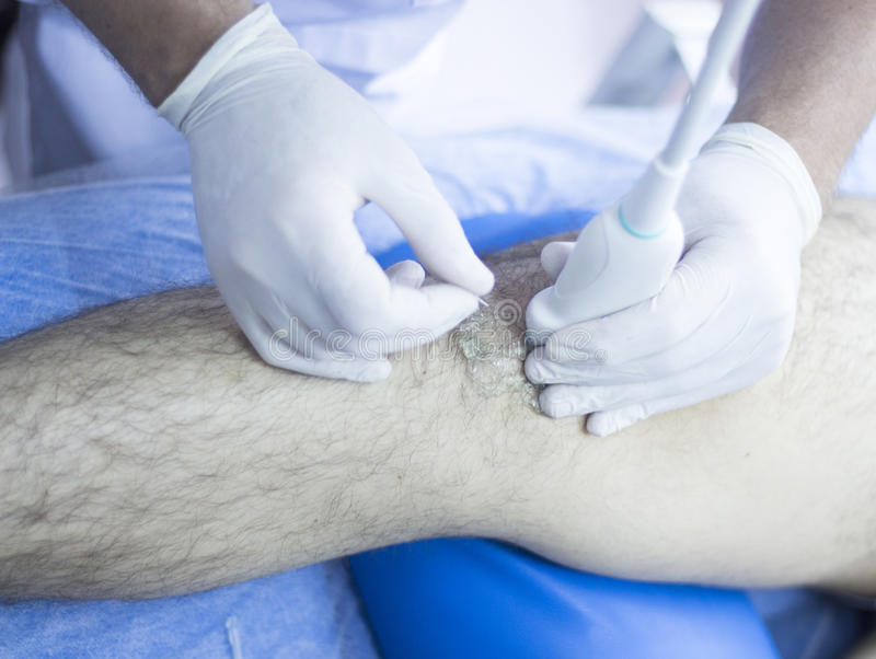 Intratissue percutaneous electrolysis. Ultrasound assisted EPI ecography intratissue percutaneous electrolysis physical therapy rehabilitation for knee and leg royalty free stock photo