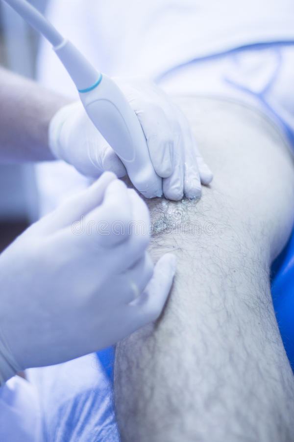 Intratissue percutaneous electrolysis. Ultrasound assisted EPI ecography intratissue percutaneous electrolysis physical therapy rehabilitation for knee and leg royalty free stock photos