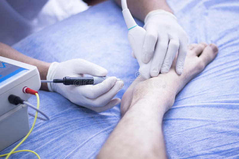 Intratissue percutaneous electrolysis. Ultrasound assisted EPI ecography intratissue percutaneous electrolysis physical therapy rehabilitation physiotherapist royalty free stock images