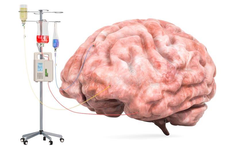 Intravenöses Therapiesystem mit menschlichem Gehirn Behandlung des Erkrankung des Gehirns-Konzeptes Wiedergabe 3d lizenzfreie abbildung