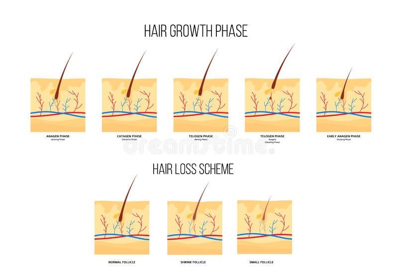 Intrig av etapper för förlust för mänskligt hår och plan stil för tillväxtfas vektor illustrationer