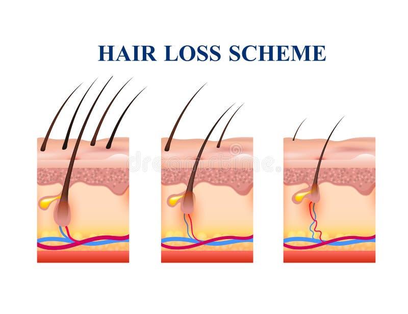 Intrig för hårförlust royaltyfri illustrationer