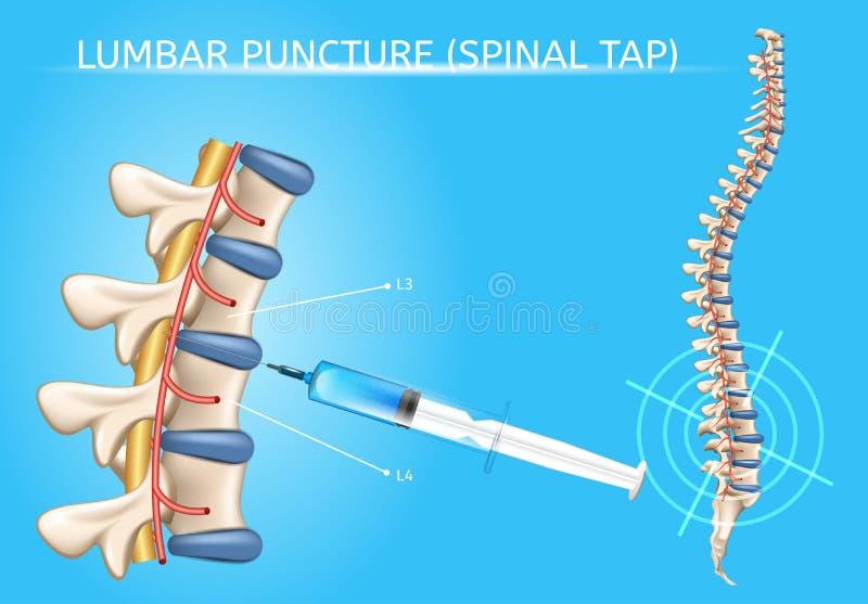 Intrig för realistisk vektor för lumbal punktering medicinsk stock illustrationer