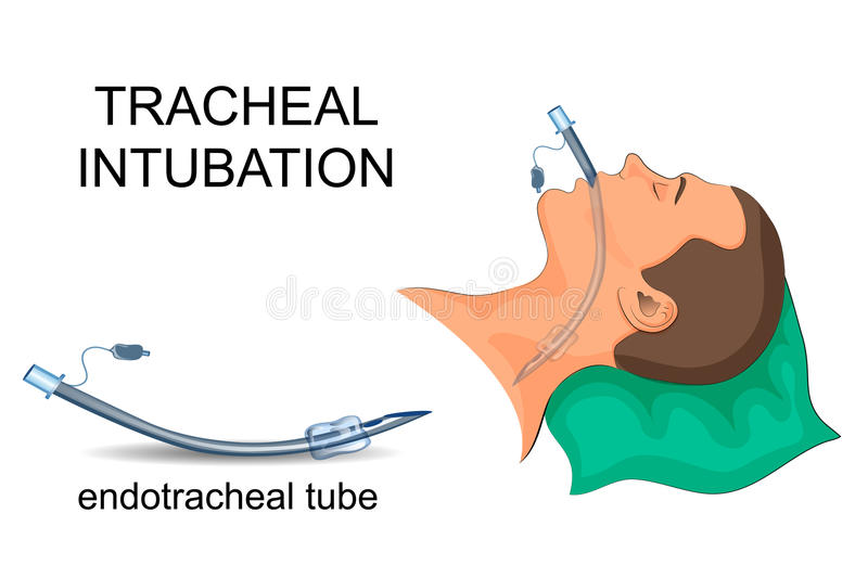 Intubation of the trachea. artificial ventilation of the lungs vector illustration