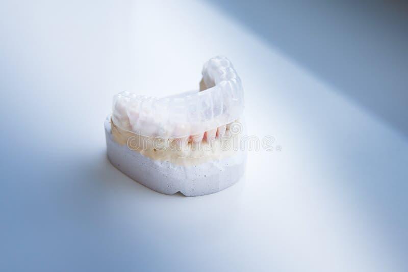 Invisalign, αόρατος πλαστικός ευθυγραμμιστής δοντιών στοκ φωτογραφία