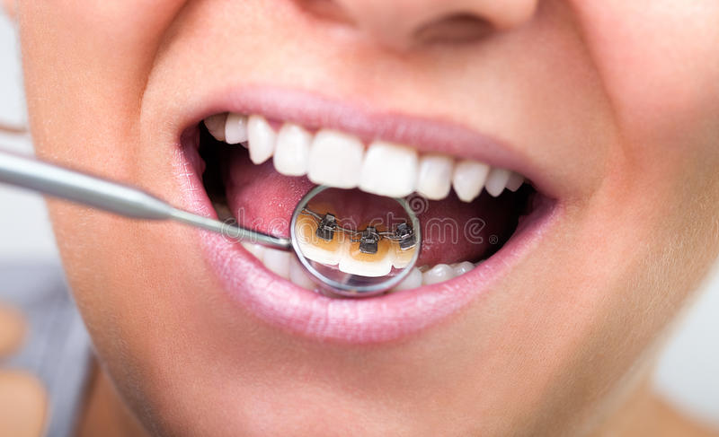 Invisible lingual braces royalty free stock photography