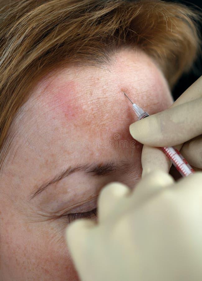 Inyección de Botox fotos de archivo