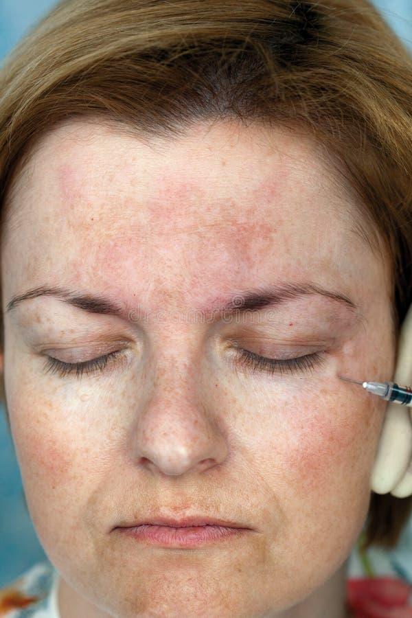 Inyección de Botox foto de archivo