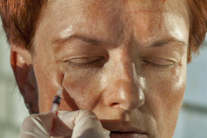 Inyección de Botox imágenes de archivo libres de regalías