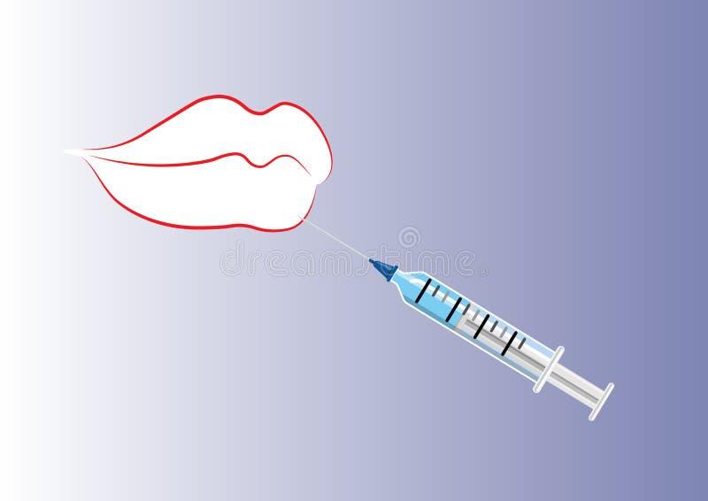 Inyección del labio y del botox o de los llenadores ilustración del vector