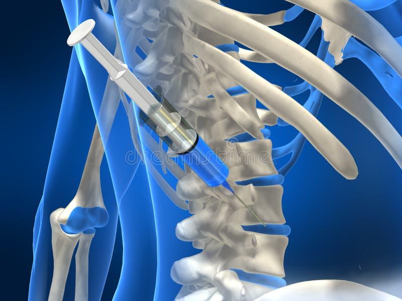 Inyección del resbalón ilustración del vector