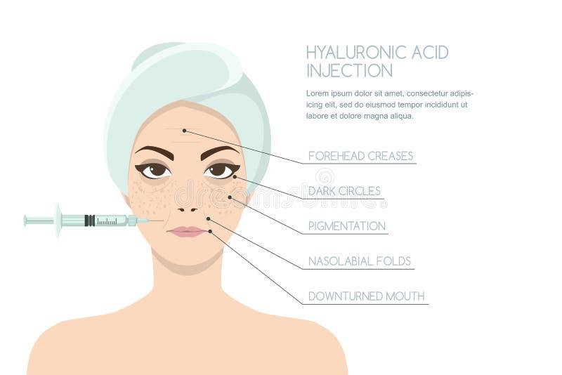 Inyección facial del ácido hialurónico, plantilla del diseño del infographics ilustración del vector