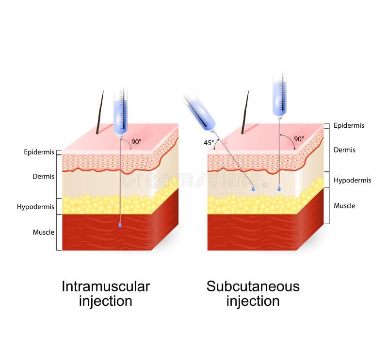 Inyección intramuscular e inyección subcutánea libre illustration