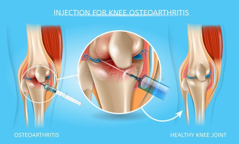 Inyección para la carta médica de la osteoartritis de la rodilla stock de ilustración