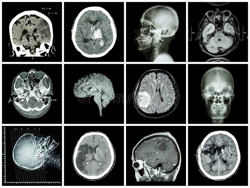 Inzameling van hersenenziekte stock foto