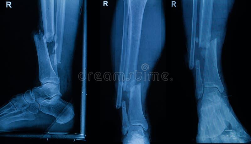Inzameling van menselijke röntgenstralen die breuk van juist been tonen stock fotografie