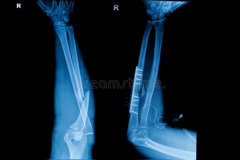 Inzameling van menselijke röntgenstralen die breuk van straalbeen tonen royalty-vrije stock foto's