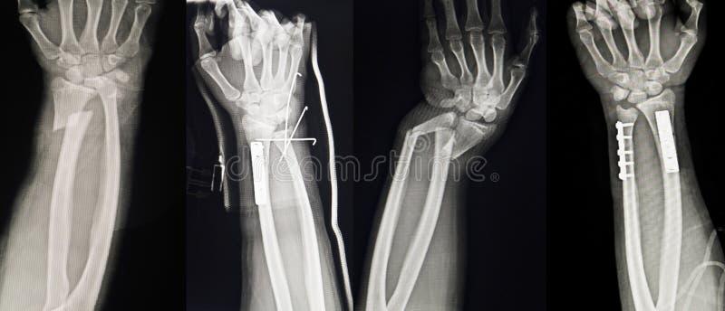 Inzameling van menselijke röntgenstralen die Veelvoudige handbreuk tonen stock fotografie